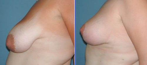 Μείωση και ανόρθωση στήθους