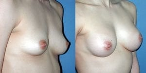 Plastic breast and silicone inserts
