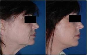 Τεχνικές Face Lifting